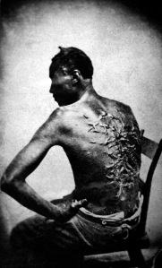 Peter, a whipped Louisiana slave, photographed in April 1863 and later distributed by abolitionists. (From Wikipedia.)